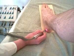 טיפול בלייזר דורבן העקב